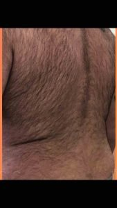Fellow One Research, The Four Body Types Research Participant 589, Body Type Three (BT3) Male - Body Type Shape Quiz
