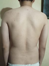 Body Type Two (BT2) Male - Fellow One Research Body Type Shape Test - The Four Body Types Research Participant 571