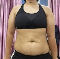 Body Type Three (BT3) Female - Fellow One Research Body Type Shape Test - The Four Body Types Research Participant 669