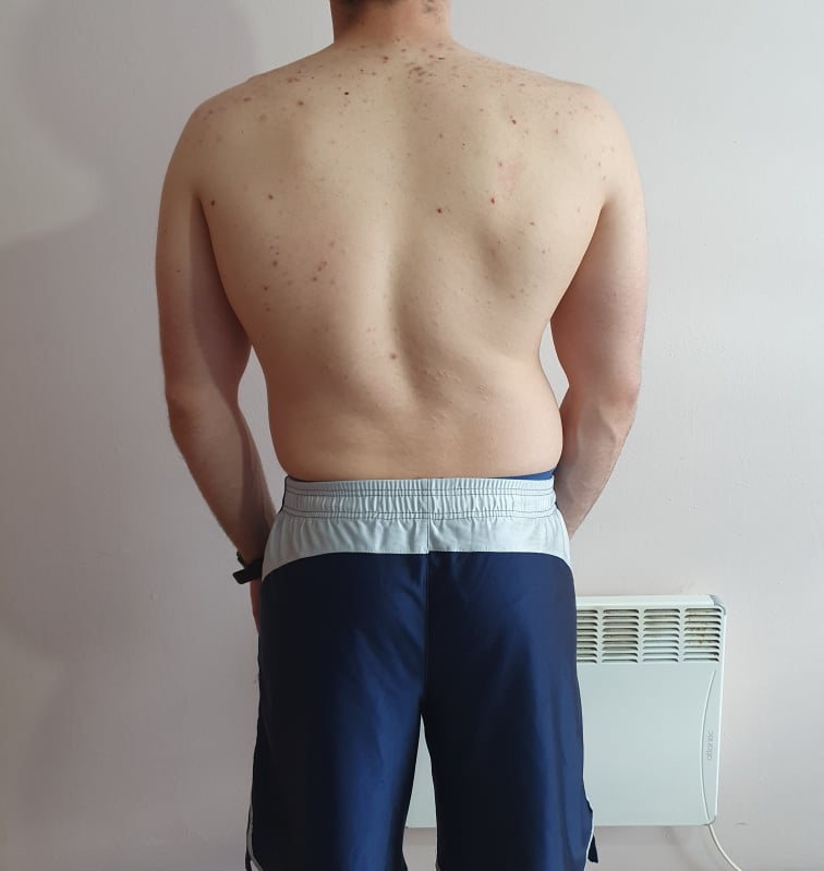 The Four Body Types Research Participant 675, Body Type Two (BT2) Male - Fellow One Research Body Type Shape Quiz/Test