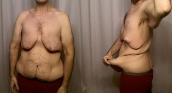 Man - Cellulite & Skinny Fat, Before and After Weight Loss