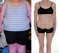 Cellulite & Skinny Fat, Weight Loss Before & After - Woman