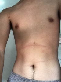 Body Type Quiz (Man/Male/Men) Results 888, Fellow One Research - The Four (4) Body Types Test, Body Type Two (BT2)