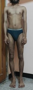 Body Type Test (Man/Male) Results 956, Body Type One (BT1) - Fellow One Research Participant Quiz, The Four Body Types